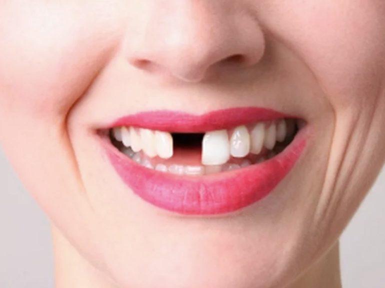 До чого сниться хитаючийся зуб: чого чекати від життя, якщо уві сні випадає передній різець без крові