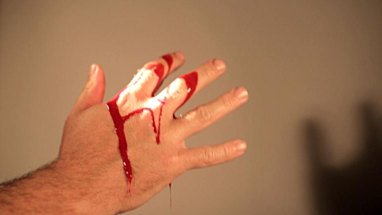 До чого сниться кров на руках: тлумачення порізу на пальці за різними сонникам