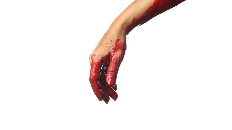 До чого сниться кров: значення по сонникам для чоловіків і жінок, тлумачення Міллера