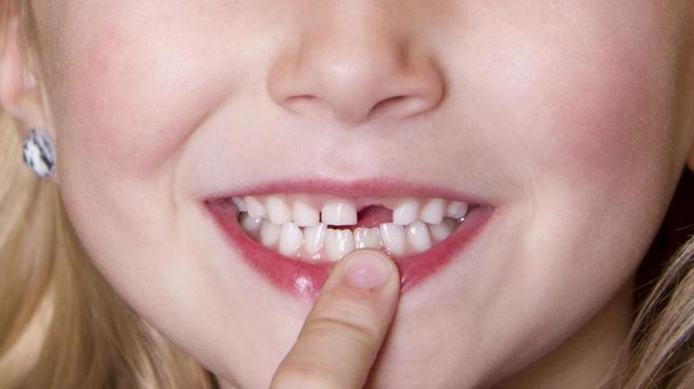 До чого сниться випадання зубів: значення снів зі здоровими, гнилими різцями, з кров'ю і без