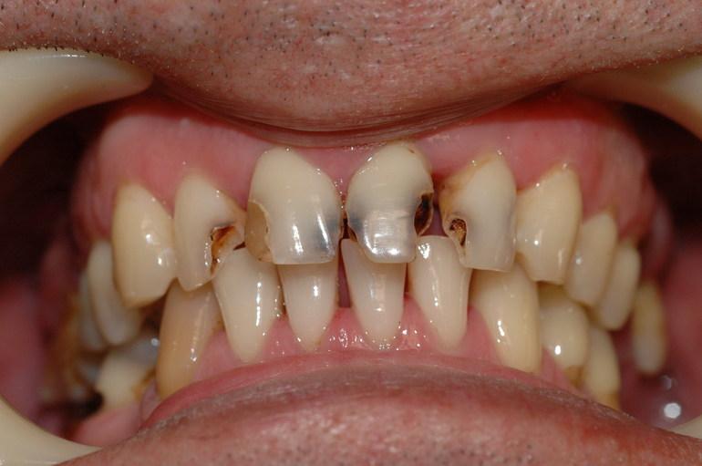 До чого сняться чорні зуби: бачити випали або почорнілі у себе в роті, значення в різних сонники