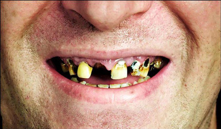 До чого сняться гнилі зуби в роті: зіпсовані, чорні, тлумачення для чоловіків і жінок