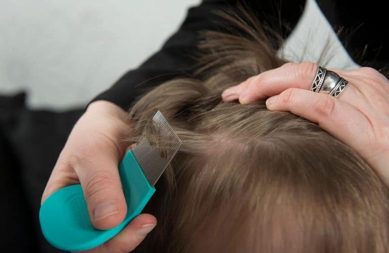 До чого сняться воші в голові у дитини: значення сну з гнидами в різних сонники