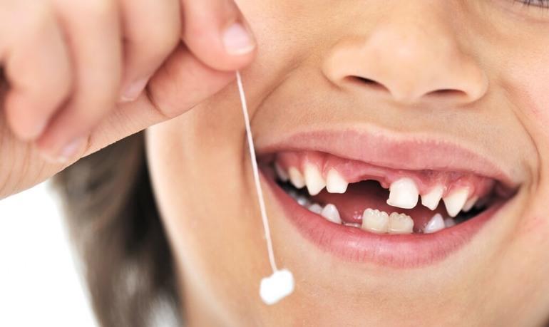 До чого випав зуб у дитини уві сні: думка сонників, сновидіння про молочні зуби, що випали з кров'ю і без