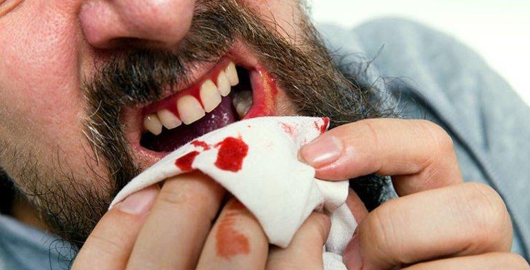Кришаться зуби в сні: тлумачення по сонникам, сюжети з кров'ю і без
