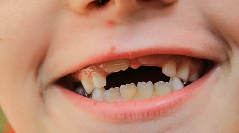 Сон, де виріс або випав новий зуб: тлумачення різних сонників залежно від подробиць сюжету