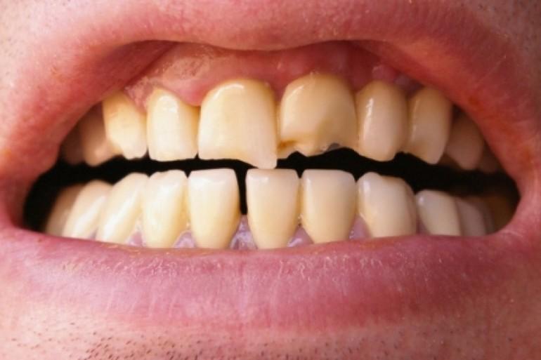 Відколовся зуб уві сні: тлумачення різних сюжетів, обламаний шматочок без крові, пошкодження переднього різця