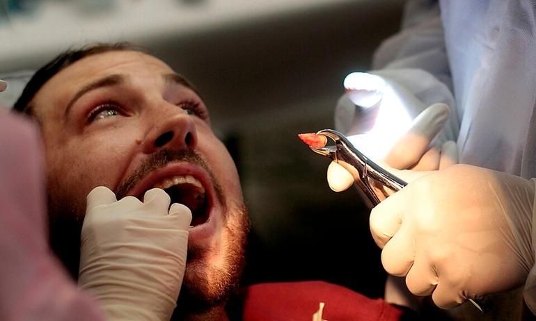 Вирвати зуб за сонником: до чого може приснитися видалення без крові, думки різних тлумачів