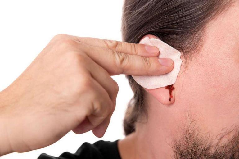 Вухо по соннику: до чого сниться здоровий і пошкоджений орган слуху